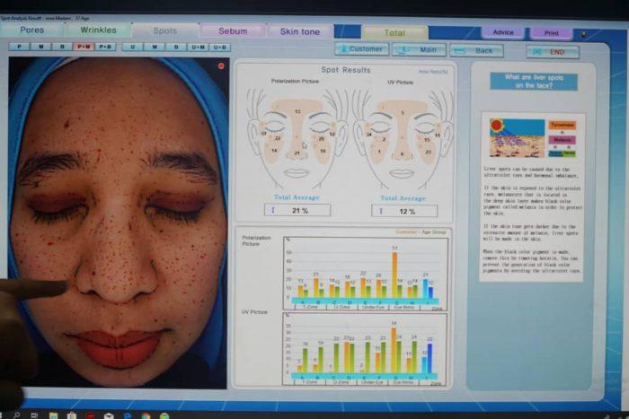 skin treatment at skin valet (3)